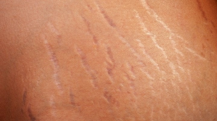 How To Best Handle Stretch Marks From Gaining Muscle